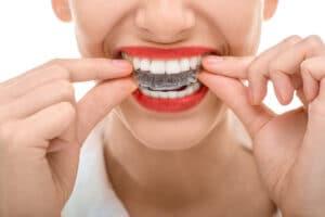 orthodontic specialist in pembroke pines