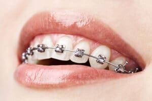 plantation-fl-orthodontist